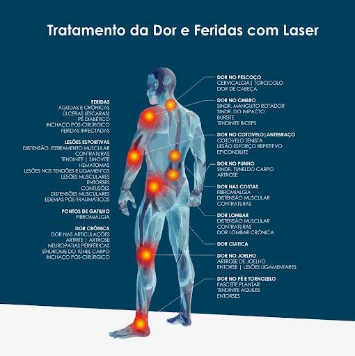 Fibromialgia nas de costas pontos dor de
